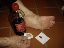 Topical Vinegar being applied for pain relief. Vinegar cannot treat allergy, inflammation or infection.